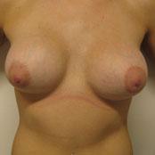 ασυμμετρία στήθους
