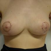 Ανόρθωση Στήθους Δημήτρης Κεραστάρης