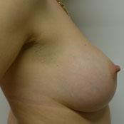 αυξητική στήθους - Κεραστάρης