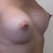 Πλαστική Στήθους Δημήτρης Κεραστάρης