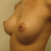 Αύξηση Στήθους - Δημήτρης Κεραστάρης