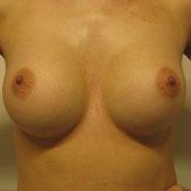 Δημήτρης Κεραστάρης - Αύξηση Στήθους