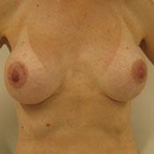 αυξητική στήθους - Κεραστάρης Δημήτρης