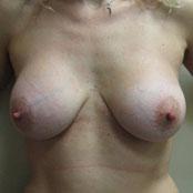 αύξηση στήθους - Δρ Κεραστάρης