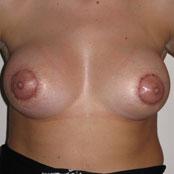 αύξηση και ανόρθωση στήθους