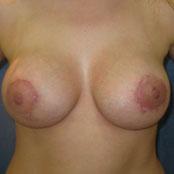 αυξητική στήθους & ανόρθωση