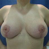 αύξηση & ανόρθωση στήθους - Δημήτρης Κεραστάρης
