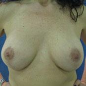 αύξηση στήθους και ανόρθωση - Δημήτρης Κεραστάρης