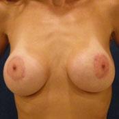 αύξηση - ανόρθωση στήθους