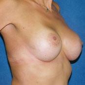 αύξηση ανόρθωση στήθους - Δημήτρης Κεραστάρης