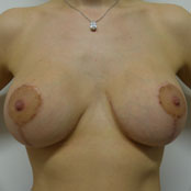 Αύξηση και Ανόρθωση Στήθους - Δημήτρης Κεραστάρης
