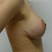 αύξηση ανόρθωση στήθους