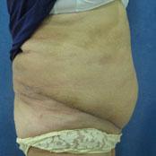 πλαστική κοιλιάς Δημήτρης Κεραστάρης