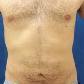 λιποαναρρόφηση κοιλιάς