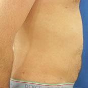 λιποαναρρόφηση κοιλιάς Κεραστάρης