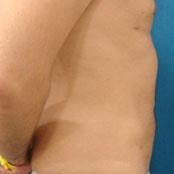 λιποαναρρόφηση κοιλιάς - άντρες