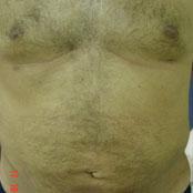Λιποαναρρόφηση Κοιλιάς - Δημήτρης Κεραστάρης