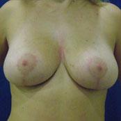 μείωση και ανόρθωση στήθους - Δημήτρης Κεραστάρης