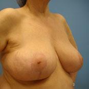 σμίκρυνση - ανόρθωση στήθους