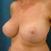 μείωση στήθους και ανόρθωση - Δημήτρης Κεραστάρης