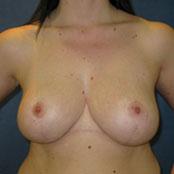 σμίκρυνση και ανόρθωση στήθους