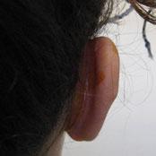πλαστική στα αυτιά