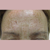 Botox Δημήτρης Κεραστάρης