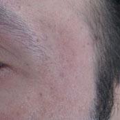 θεραπεία με fractional laser